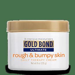 Keratosis Pilaris: Gold Bond Cream