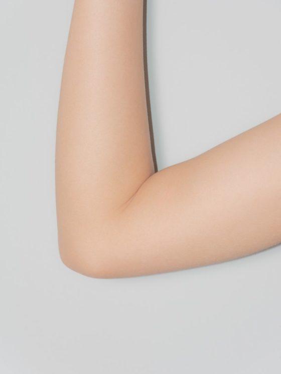 Keratosis Pilaris: Arm